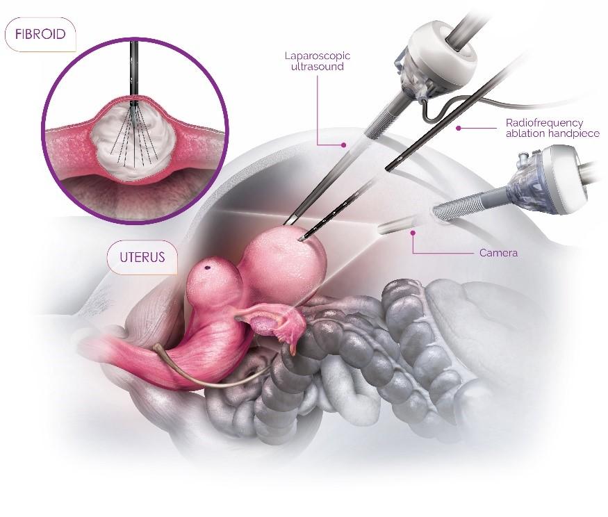 acessa-procedure2